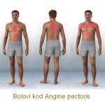 angina_pectoris-bolovi