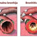 bronhitis