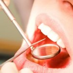 usna-supljina
