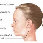 Infektivna-mononukleoza
